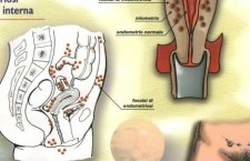 Endometriosi e infertilità. La storia di Anna