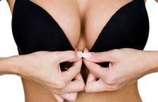 Il reggiseno provoca il tumore al seno. Storia di una fake news di annata