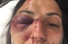 Appello legali movimento NOTAV in ordine al ferimento di Giovanna